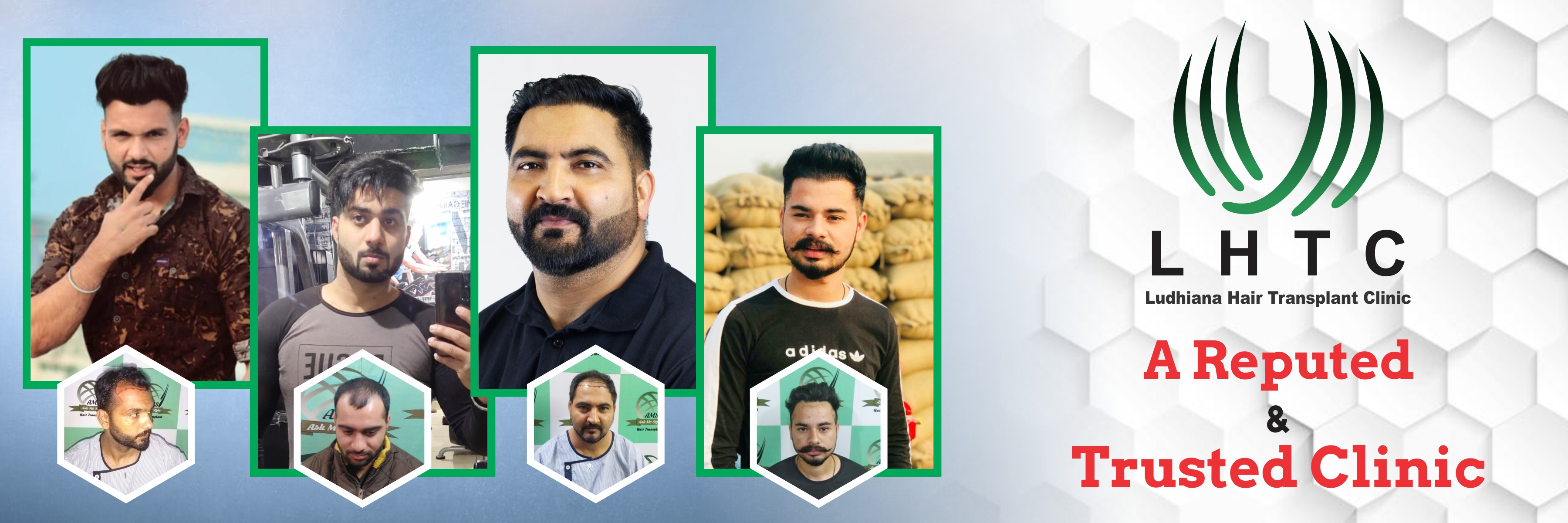 FUE Hair Transplant Clinic in Punjab