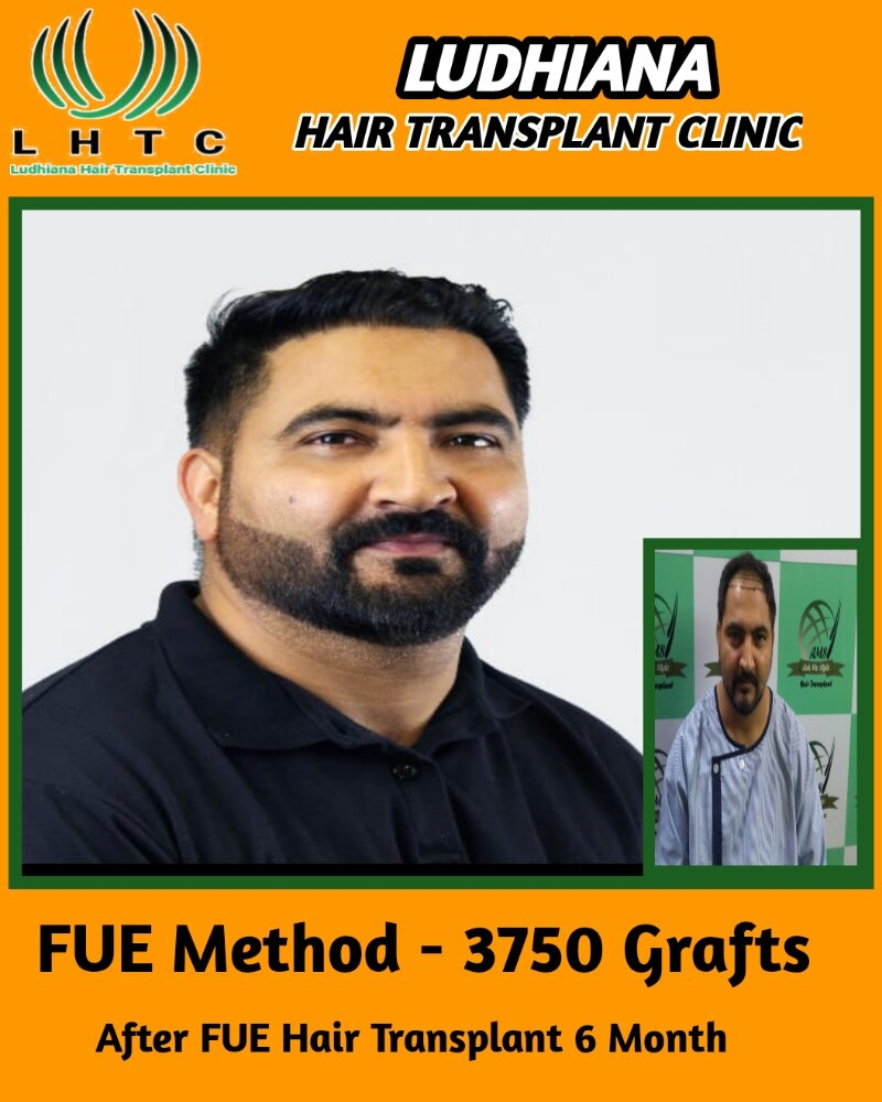Latest Hair Transplant Result